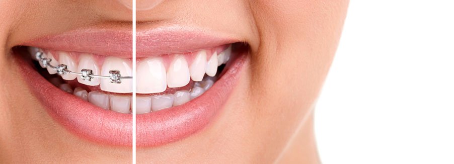 Invisalign Clear Braces, Ottawa Dentist